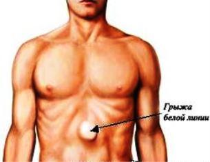 Pilvo sienos išvaržos. Simptomai, priežastys, eiga ir gydymas