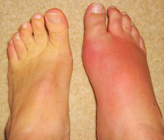 La artrita ai si parestezii pe picioare