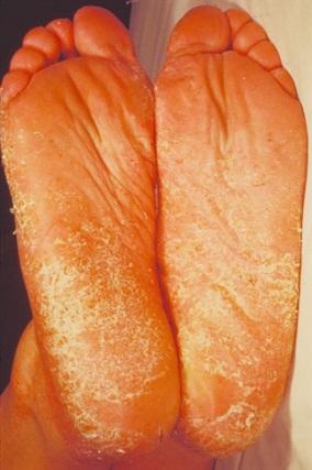 Trichophyton rubrum grybelis