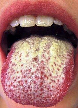 Candida albicans gydymas