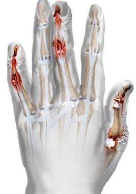 Psoriazės artritas